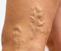 proširene vene i masaža